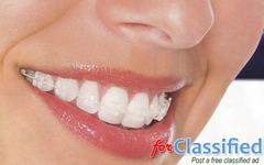 Effective and Advanced Dental Treatment | Aspen Dentals